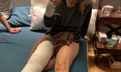 Luciana Littizzetto cade per strada e si rompe rotula e polso