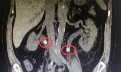 Da poco guarito dal Covid, operato d'urgenza per calcoli in entrambi gli ureteri