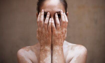 """Vitiligine, 14mila firme per la petizione della cuneese Martina Lovera: """"Stop all'Iva al 22% su creme solari"""""""