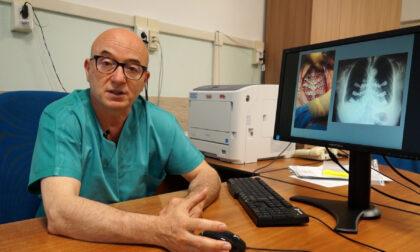 Tumore osseo allo sterno, creata a Cuneo innovativa protesi su misura da immagini Tac
